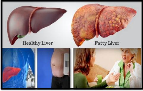 reverse_fatty_liver_image_3